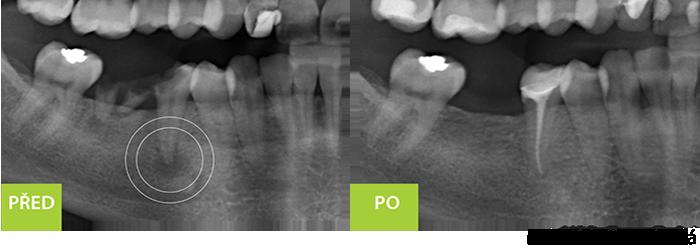 Endodontické vyšetřenív2