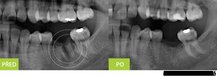 Extrakce pozůstalých zubů